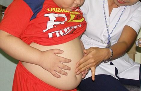 Một trẻ có biểu hiện béo bụng đang được khám tại Trung tâm Dinh dưỡng TP.HCM.